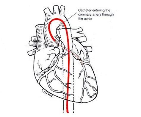 Coronary Artery Disease - STEMI Case #1 - Question #1